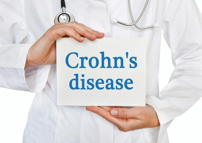 Cannabis and Crohn's Disease: What You Need to Know