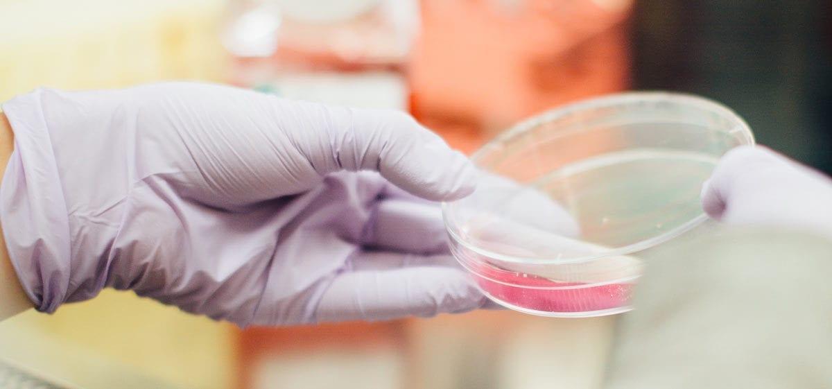 Lab Testing Petri Dish